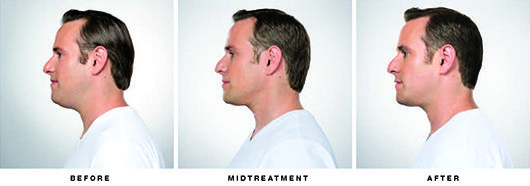 Patient Jason Before and After Kybella Treatment
