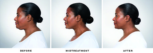 Patient Ponti Before and After Kybella Treatment